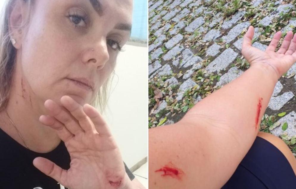 Ex-paquita, Ana Paula é filmada se machucando antes de acusar ex-marido por agressão