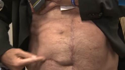 """Bolsonaro levanta camisa, mostra cicatriz na TV e diz: """"Tem gente que não acredita"""""""