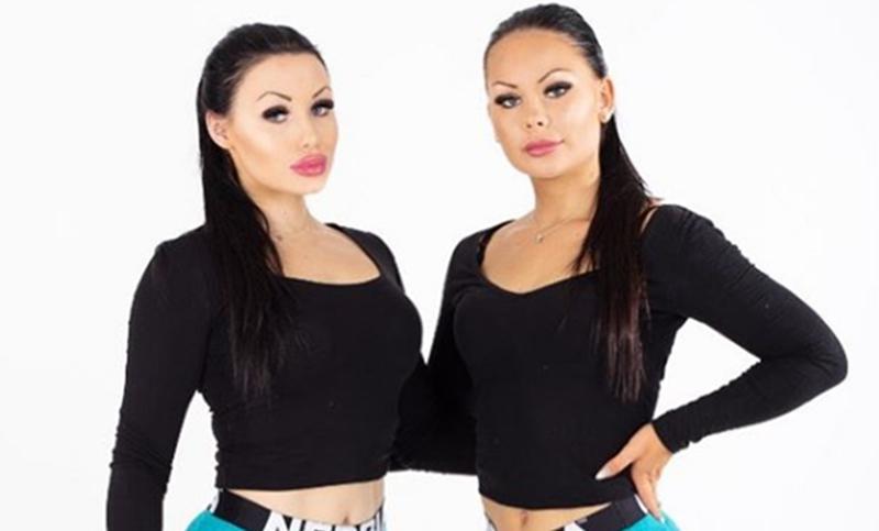 Amigas de infância se vestem iguais e fazem plásticas para parecer gêmeas